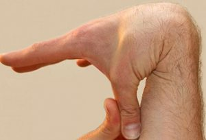 دانلود تحقیق بیماری نرمی استخوان